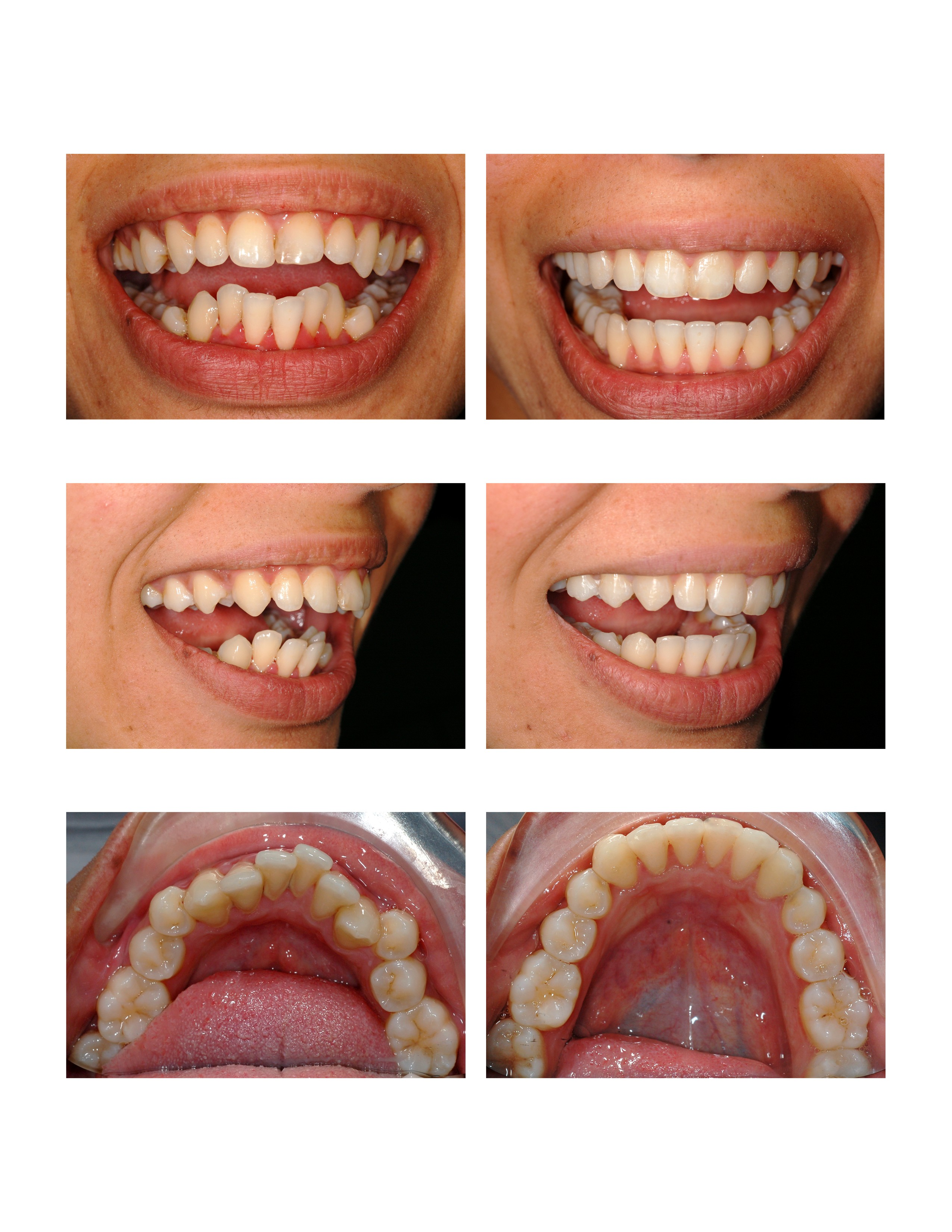 Invisalign Before After 1
