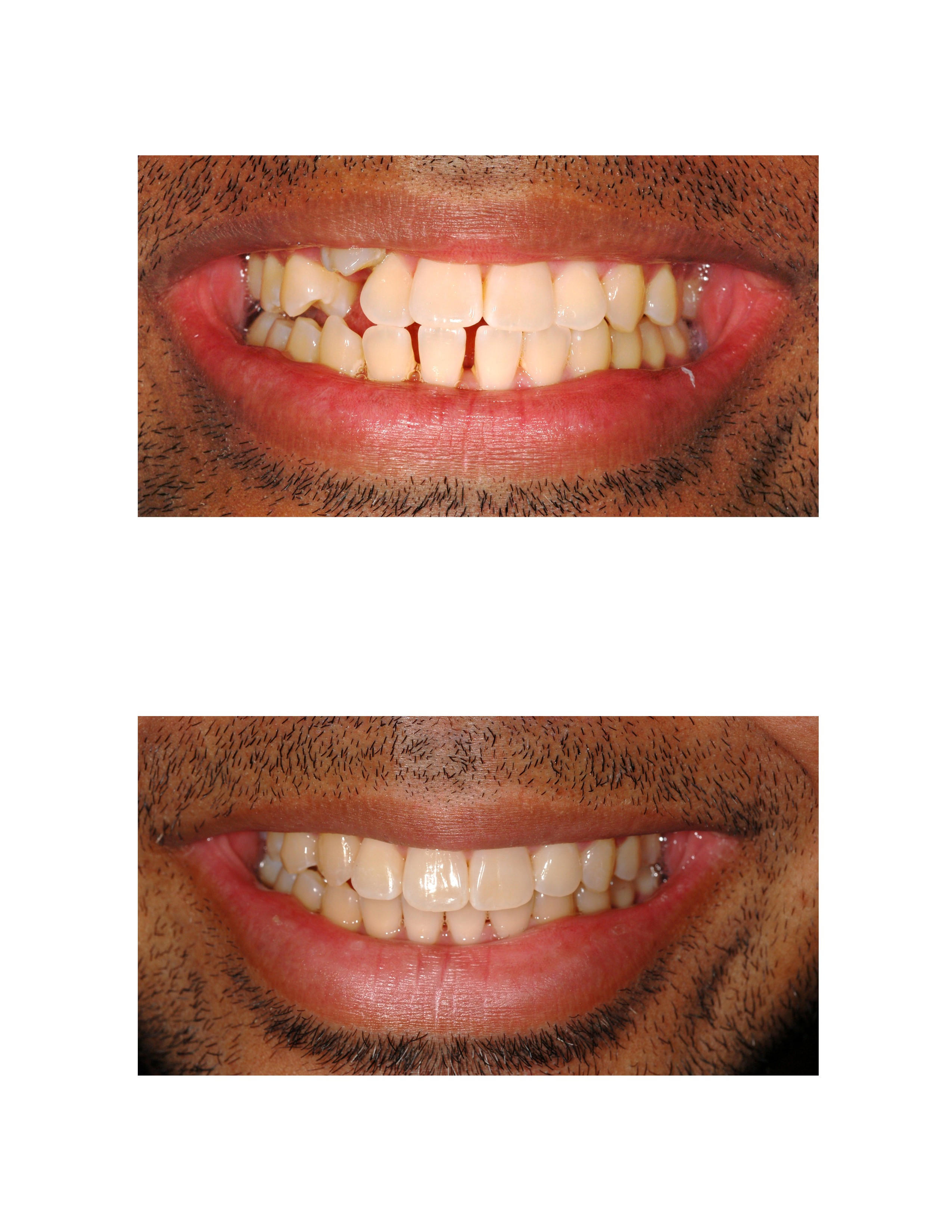 Invisalign Before After 3