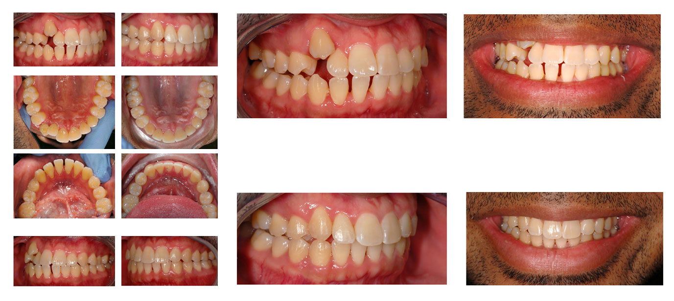 invisalign-result-burbank-invisalign-before-and-after